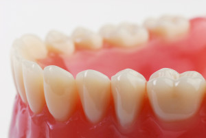 dental-fillings