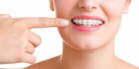 ceramic braces2