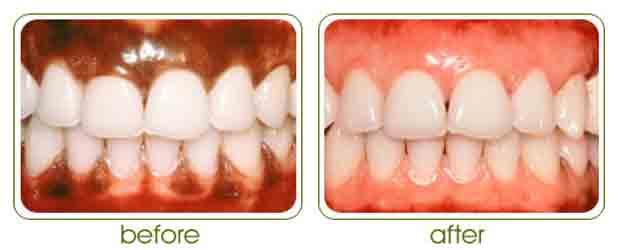 laser_depigmentation_gums_denticare (1)