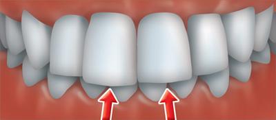 ortho treatment 2