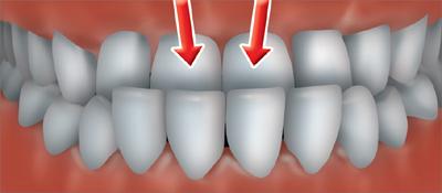 ortho treatment3