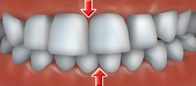 ortho treatment6
